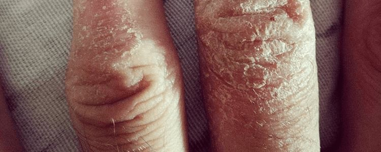 SKIN ALLERGY  OR ECZEMA